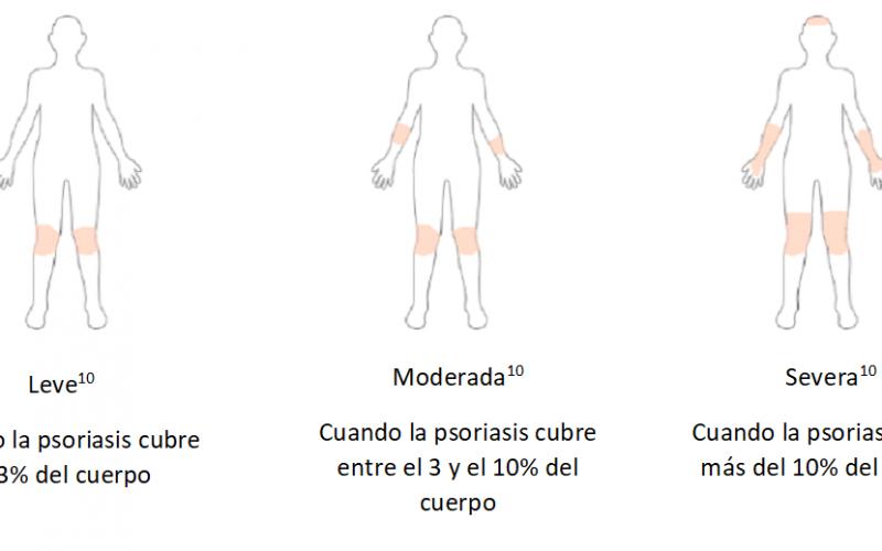 La psoriasis es una enfermedad con muchas manifestaciones